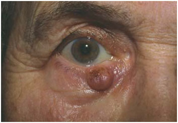 eye cancers